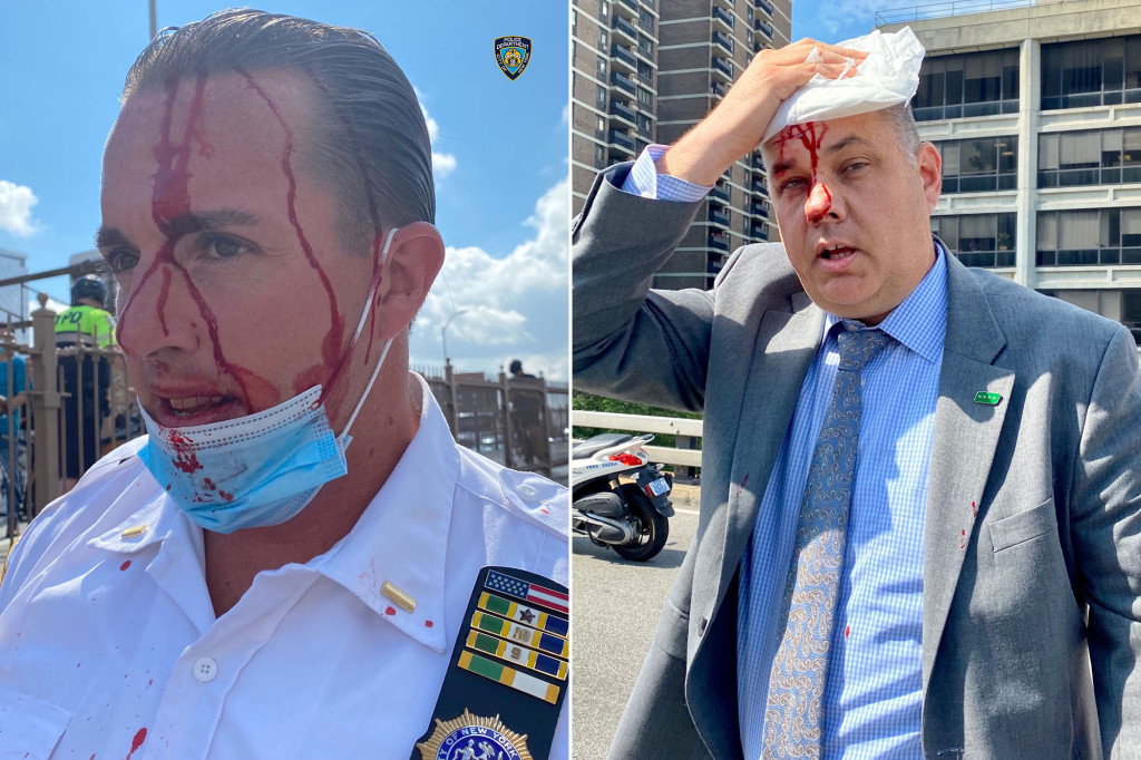 NYPD Chief of Department injured during protest on Brooklyn Bridge 1
