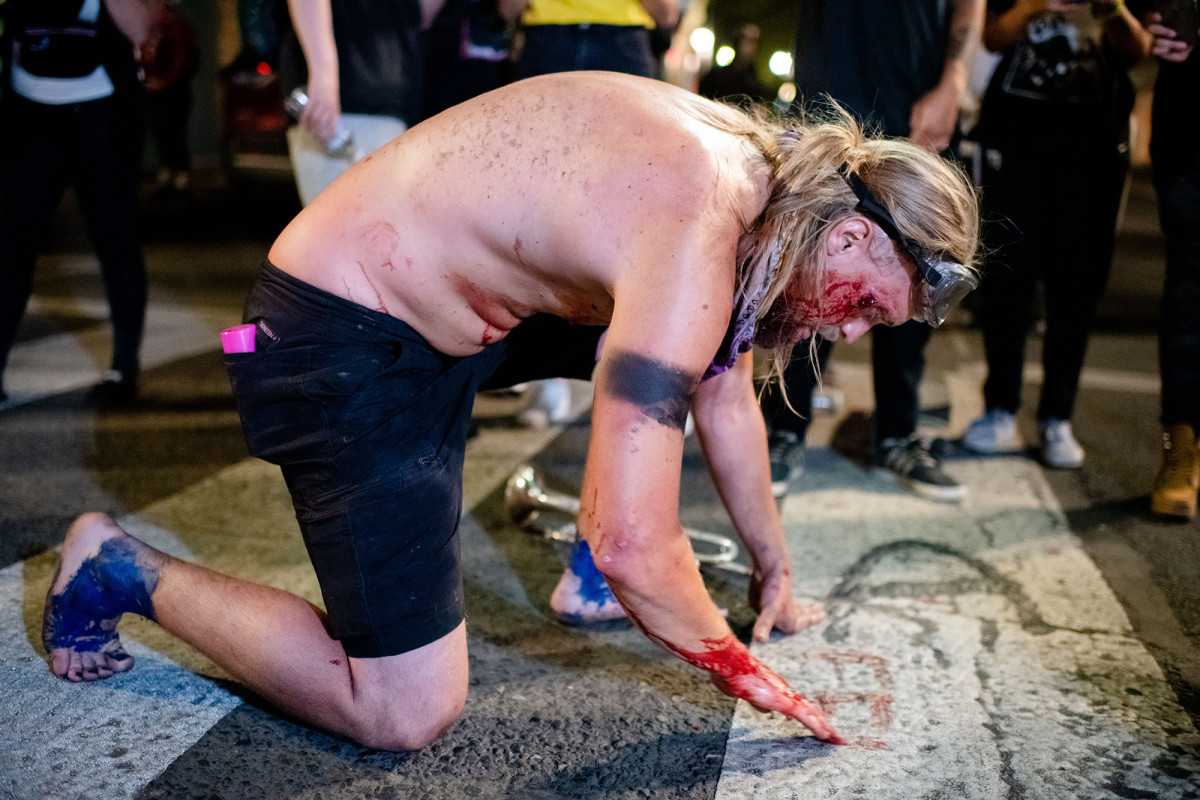 Portland protester writes 'FEDS' in own blood after being shot in face 1