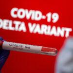 Beyond Delta, scientists are watching new coronavirus variants 5