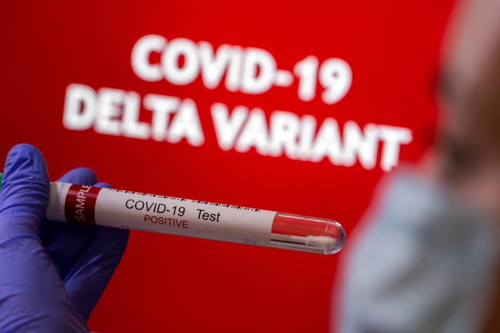 Beyond Delta, scientists are watching new coronavirus variants 1